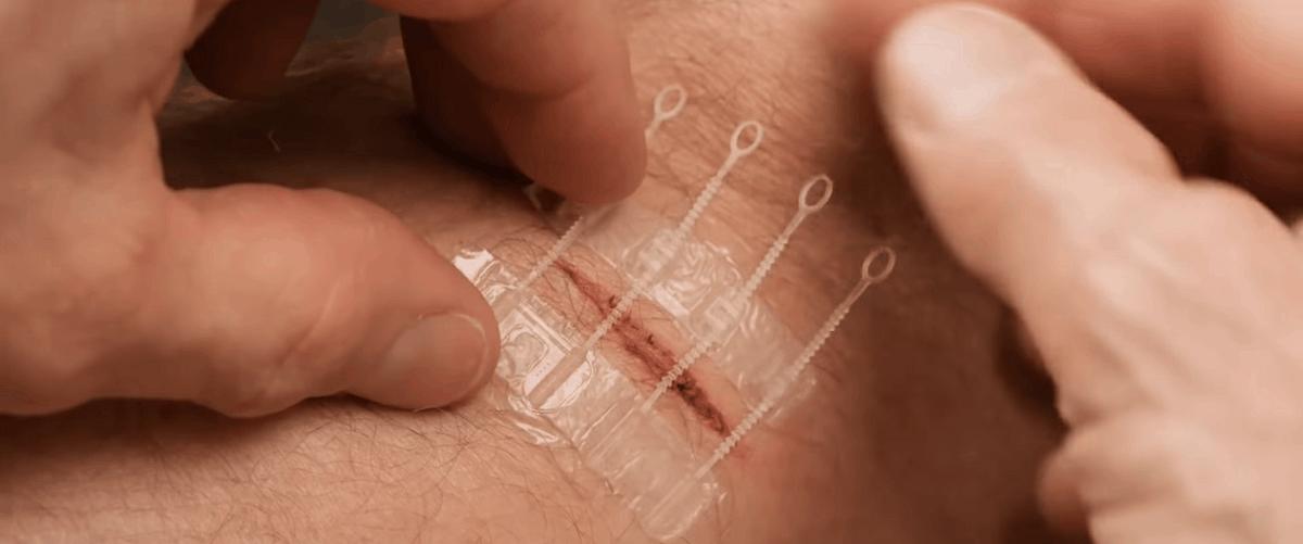 ZipStitch Stitches Alternative